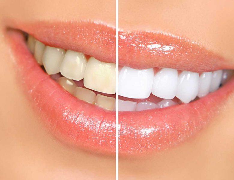 Eryaman Diş Herkes İçin Gerekli