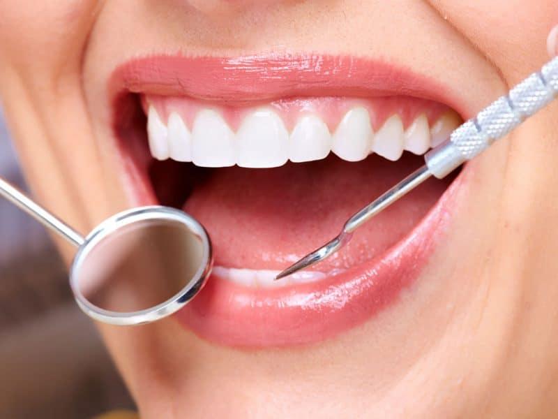 Sincan Diş Kaplama Ve Tedavi Yöntemleri