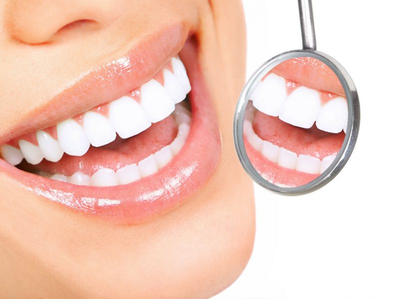 Ortodonti Analizi Nasıl Yapılır?