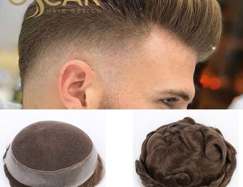 Oscar Hair Protez Saç Merkezini Denemeye Ne Dersiniz?